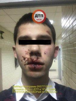 В Киеве кавказцы избили и протащили на капоте пешехода